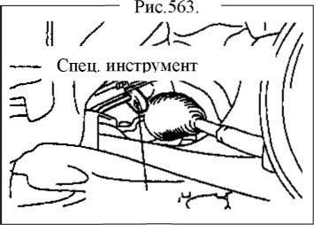 5.  Механизм гидроусилителя руля Ремонт Geely FC